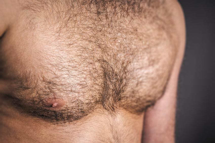 волосатые места на женском теле фото